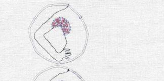 Lymphome – Les différents types de lymphome @Plus de trente lymphomes différents sont recensés à ce jour. © Sandra Dufour