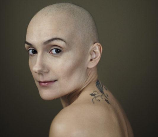 Cancer et perte de cheveux. Caroline assume. @Caroline, 32 ans © Patrick Swirc