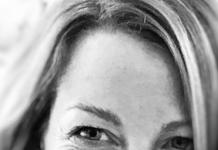 Alexandra témoigne de son auto-greffe après un lymphoedème @J'ai découvert seule qu'il existait une opération pour lutter contre le lymphoedème