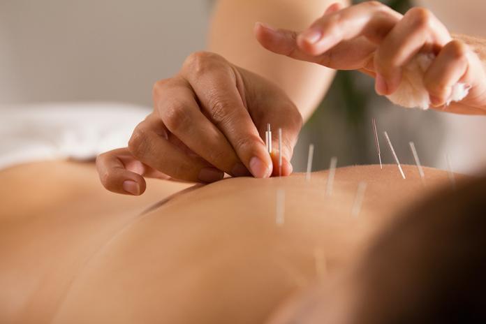 L'acupuncture est très utile pour lutter contre les effets secondaires du cancer - roseup association - face aux cancers osons la vie