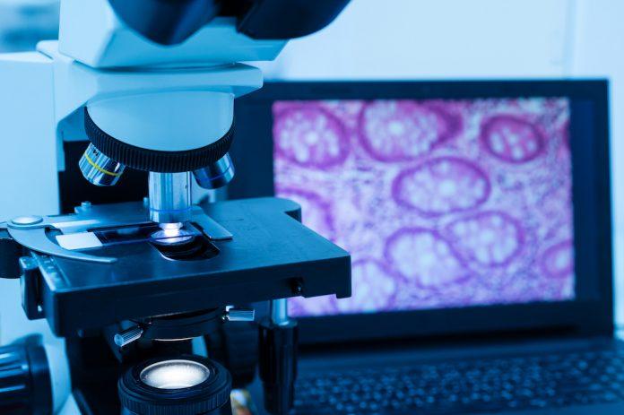 L'analyse de la biopsie permet de choisir le bon traitement contre le cancer - roseupassociation - rosemagazine
