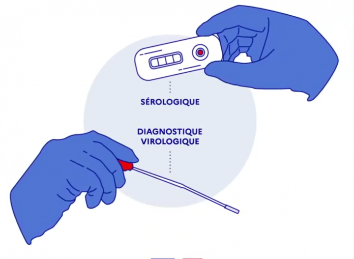 Tests sérologiques et virologiques du coronavirus - roseupassociation rosemagazine