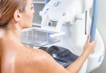 La douleur de la compression pousse de nombreuses femmes à renoncer au dépistage par mammographie. L'autocompression permet aux femmes de mieux tolérer cette douleur - roseup face aux cancers osons la vie