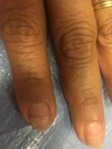 Les ongles aussi sont impactés par la chimiothérapie - roseupassociation - rosemagazine