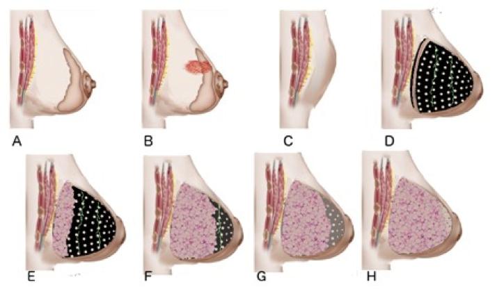La prothèse MATTISSE repose sur une prothèse biorésorbable et de la greffe d'adipocytes