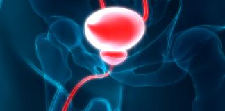 La thermochimiothérapie permet d'éviter l'ablation de la vessie dans les cancers de la vessie non infiltrants - roseup association