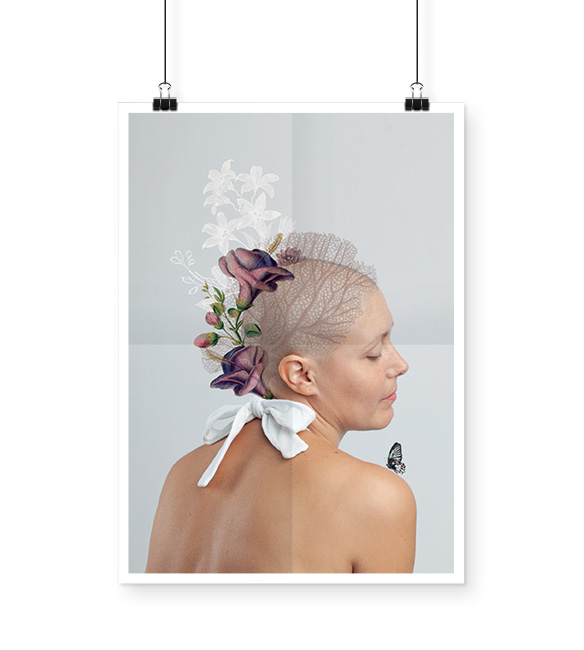 alopecie-rosemagazine-roseupassociation-02