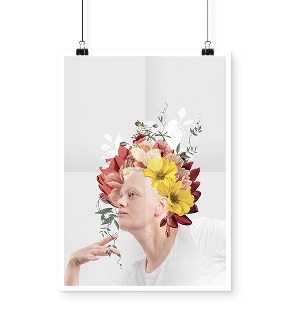 alopecie-rosemagazine-roseupassociation-03