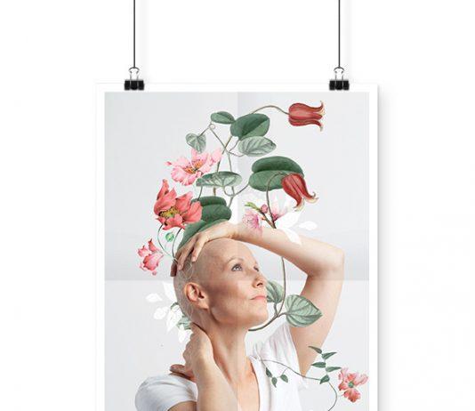 alopecie-rosemagazine-roseupassociation-01